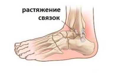 Как избежать растяжения связок на ногах?
